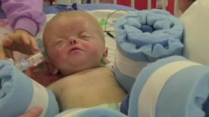 Mason Fluty: Infant born with webbed hands and toes ...